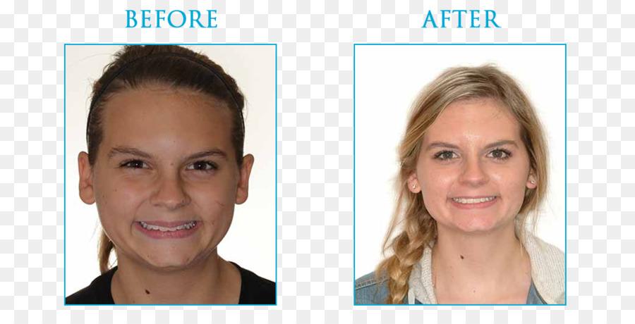 Eyebrow Hair coloring Cheek Chin Forehead - Orthodontic correction