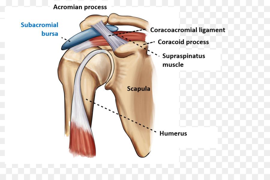 Subacromial Bursitis Shoulder Impingement Syndrome Subacromial Bursa
