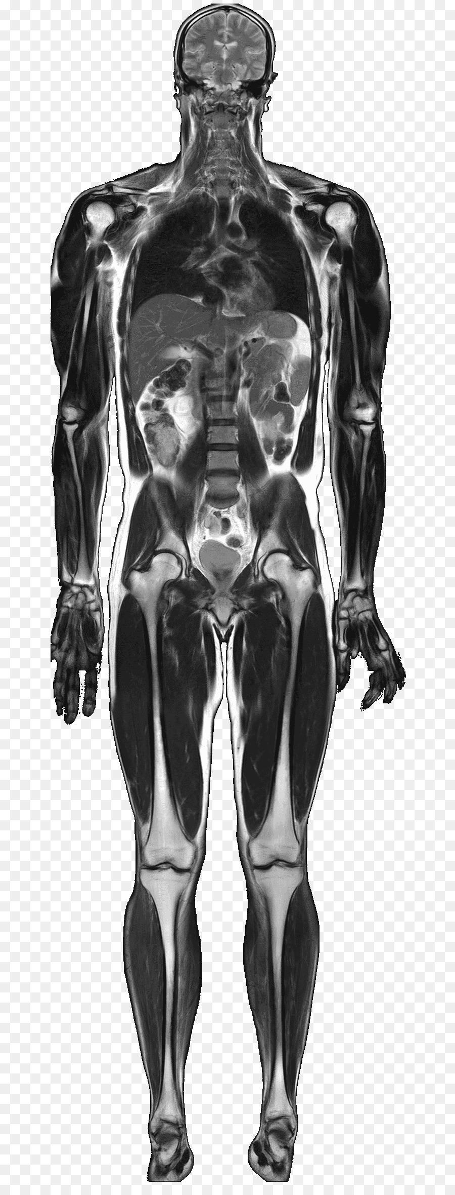 Imágenes de resonancia magnética de imágenes Médicas de la Anatomía ...