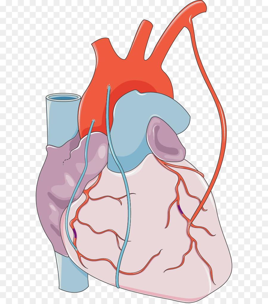 La cirugía de revascularización coronaria infarto de Miocardio ...