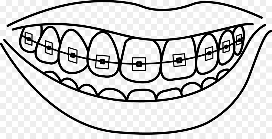 Dental Braces Dentistry Human Tooth Drawing Tooth Cavity Png